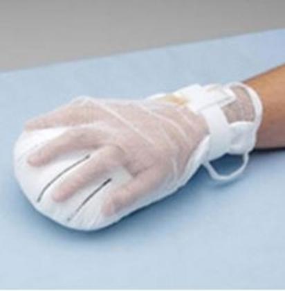 """Immagine di Guanto di protezione e immobilizzazione mani """"Posey"""" 2816  - Mediland cod. 302017"""